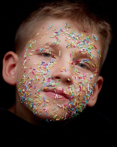 mejorar el acné y el aspecto de la piel