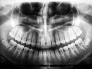 Tac dientes y hueso mandíbula